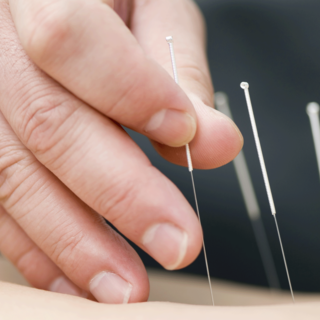 A doctor treats a patient with acupuncture.